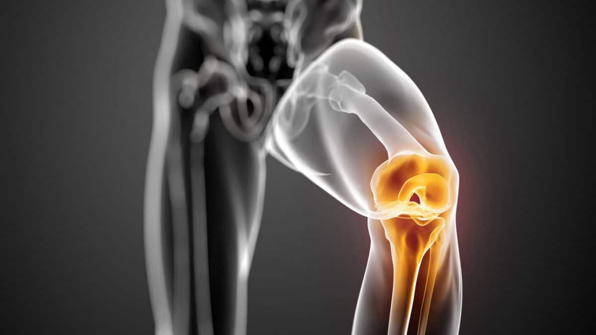 lesioni meniscali -ginocchio-