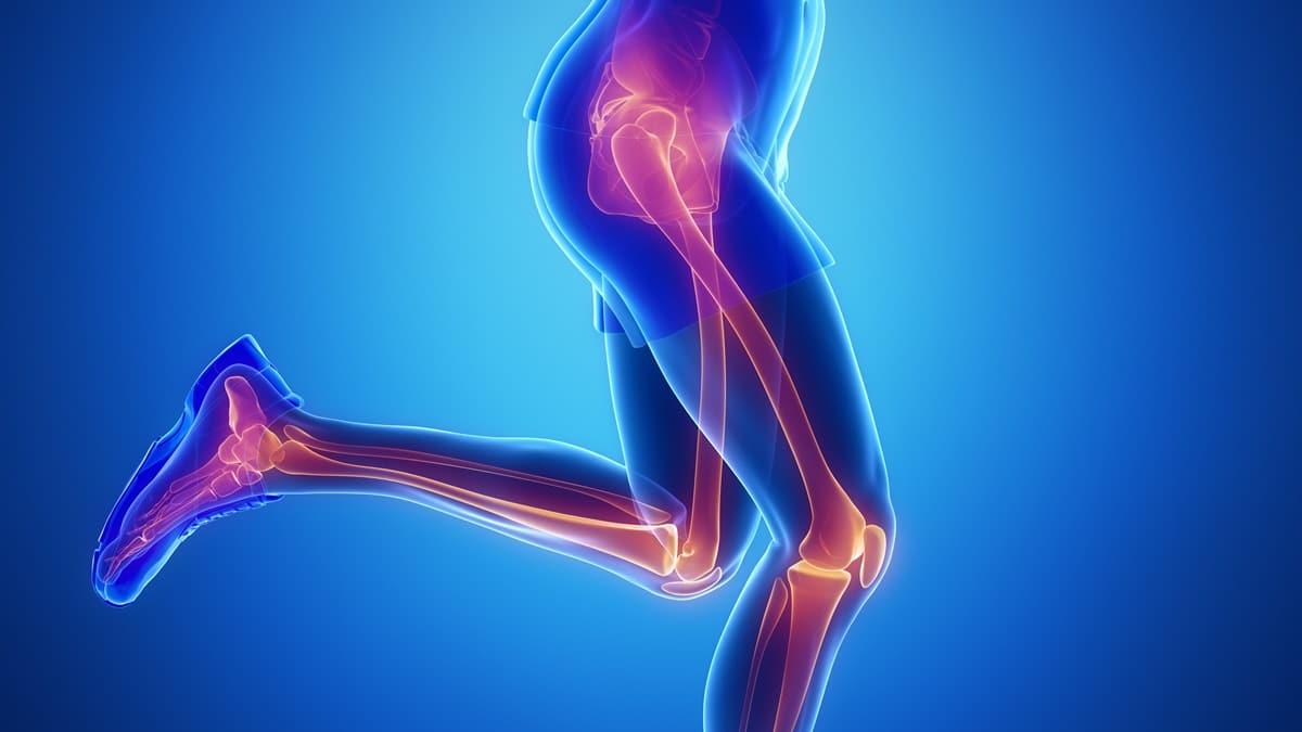 coxartrosi anca - paolo lucci - chirurgo ortopedico specializzato