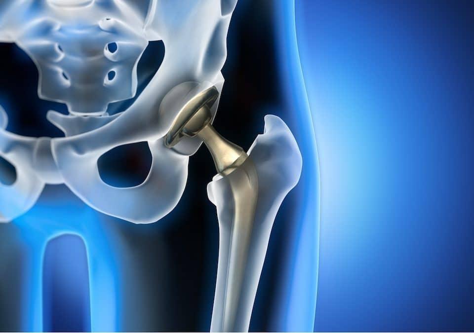ortopedico protesi anca