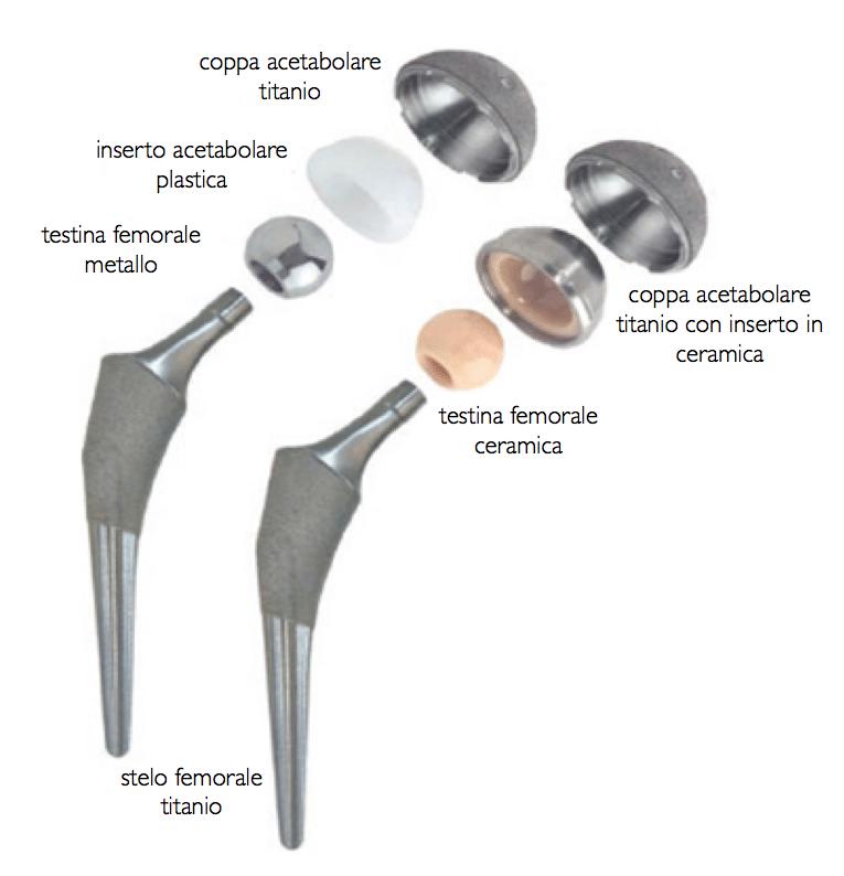 ortopedico protesi d'anca