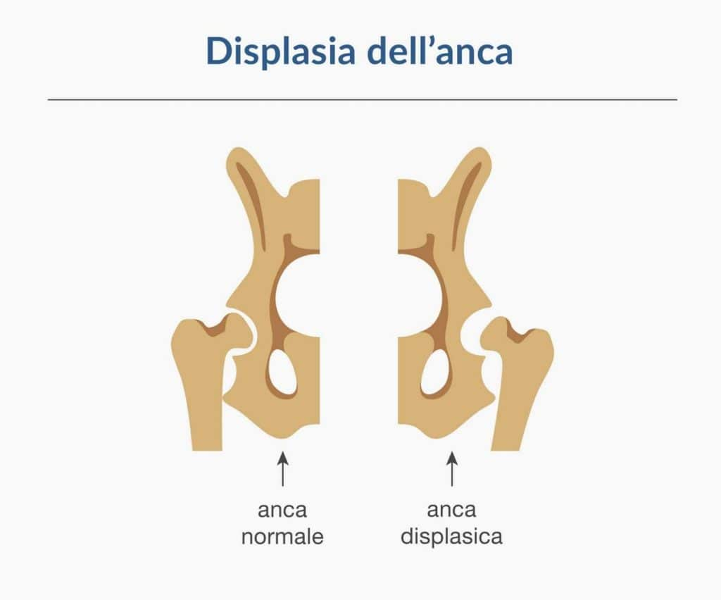 ortopedico protesi anca - paolo lucci